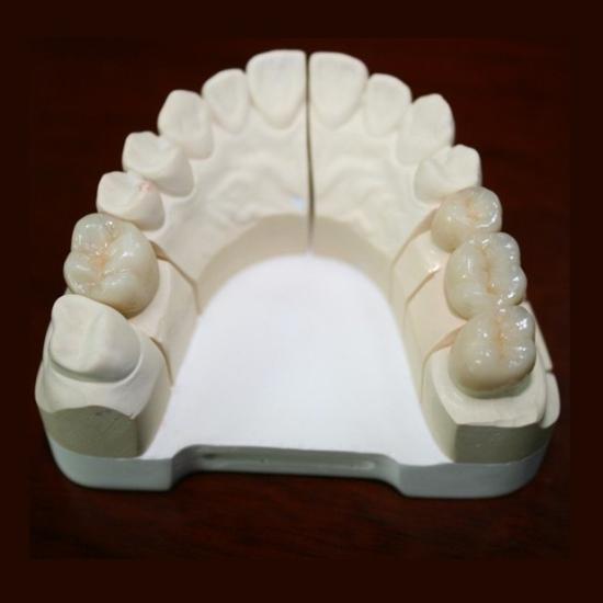 Dental Ips E Max All Ceramic Crown Casting Porcelain Bridge