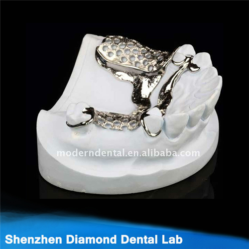 Dental Metal Partial Framework