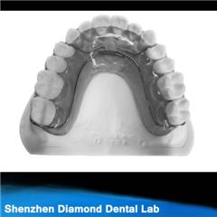 Dental Orthodontic Appliance Frank Retainer