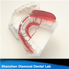 Dental Orthodontic Appliance Hawley Retainer
