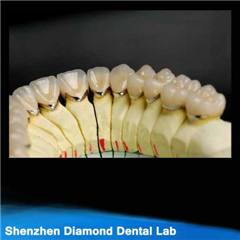 Dental Precious Pfm Crowns