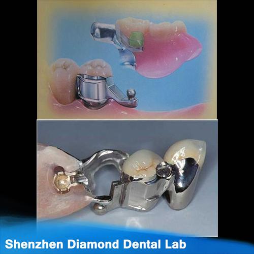 Dental Precision Attachment Crowns