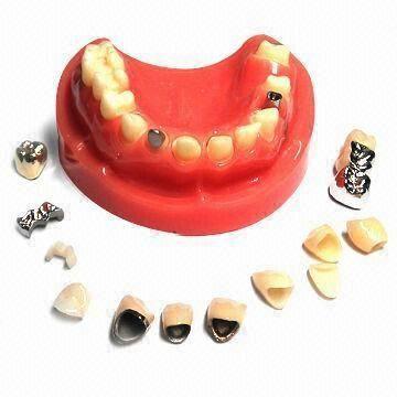 Dental Samples Zirconia Pfm Inlay Fmc Captet Glod Emax