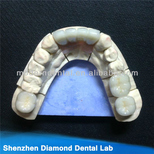 Dental Zirconia Weiland Crowns