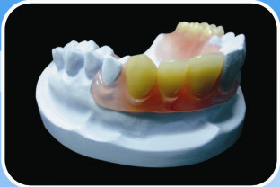 Flexible Denture Valplast Endura Resin Teeth Base Plate