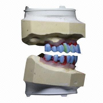 U L Implant Bridge Zirconium Alumina Valplast